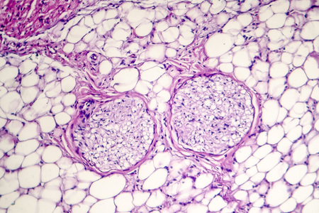 Pericarditis, inflammation of the heart pericardium, light micrograph, photo under microscope