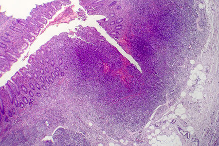 Suppurative appendicitis, light micrograph, photo under microscope showing neutrophilic infiltrates of the appendix wall