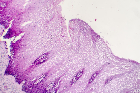 Squamous cell carcinoma, light micrograph, photo under microscope Stock Photo