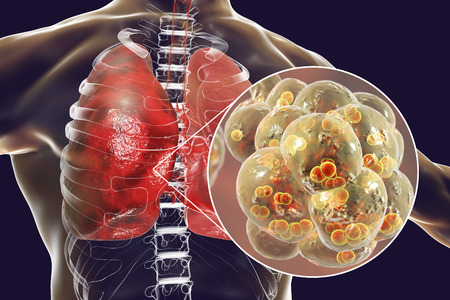 Pneumococcal pneumonia, medical concept. 3D illustration showing bacteria Streptococcus pneumoniae inside alveoli of the lung Stock Photo
