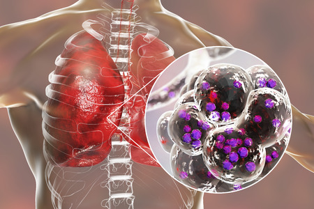 Staphylococcal pneumonia, medical concept. 3D illustration showing bacteria Staphylococcus aureus inside alveoli of the lung