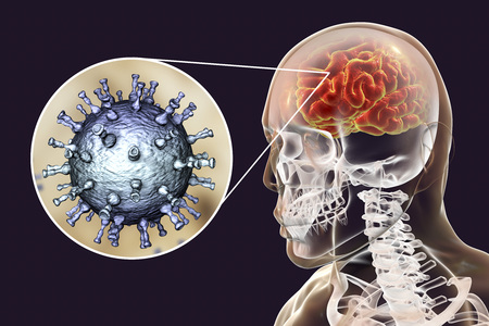 Varicella zoster virus VZV encephalitis, medical concept, 3D illustration showing brain infection and close-up view of VZV in the brain. Encephalitis is one of complications of chickenpox