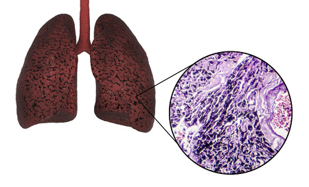 Smokers lungs, 3D illustration and light micrograph, photo under miscroscope showing accumulation of carbon particles in lung tissue
