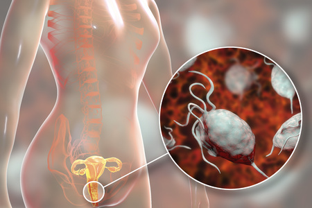 Tricomoniasis femenina, ilustración 3D que muestra vaginitis y vista cercana del parásito Trichomonas vaginalis Foto de archivo