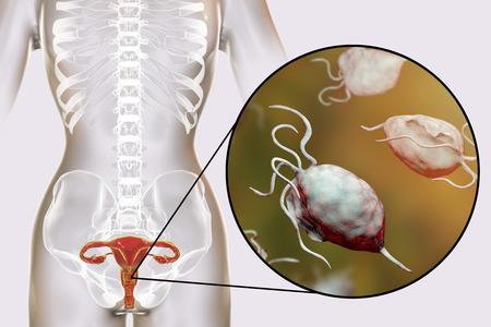 Trichomonase féminine, illustration 3D montrant la vaginite et vue rapprochée du parasite Trichomonas vaginalis