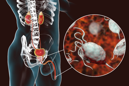 Trichomoniasis infection in man, 3D illustration showing male anatomy of genitourinary system and close-up view of Trichomonas vaginalis protozoan causing urethritis Фото со стока