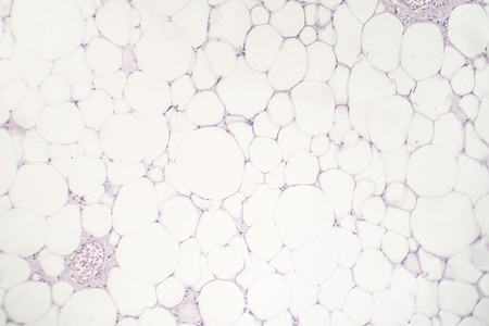 Lipoma, benign growth of fatty tissue, light micrograph, photo under microscope