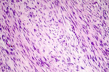 Fibroma, a benign tumour of fibrous tissue, light micrograph, photo under microscope