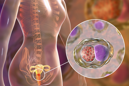 Female chlamydiosis, medical concept. 3D illustration showing close-up view of Chlamydia trachomatis bacteria infecting cells of cervix uteri Stockfoto