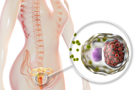 Female chlamydiosis, medical concept. 3D illustration showing close-up view of Chlamydia trachomatis bacteria infecting cells of cervix uteri Standard-Bild