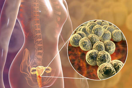 Female gonorrhea, medical concept. 3D illustration showing close-up view of Neisseria gonorrhoeae bacteria infecting cervix uteri Imagens