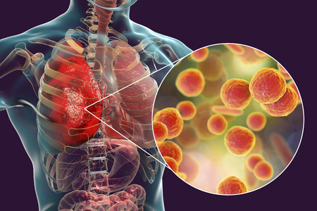 Lung infection caused by bacteria Mycoplasma pneumoniae, 3D illustration. Bacterial pneumonia medical concept