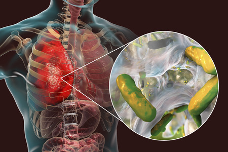 Longinfectie veroorzaakt door bacteriën Pseudomonas aeruginosa, 3D-afbeelding. Nosocomiale longontsteking. Longontsteking bij immuungecompromitteerde patiënten, bij personen met cystische fibrose, mucoviscidose