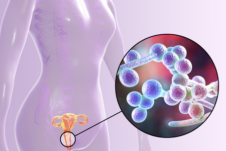 Vaginal thrush, female candidiasis, 3D illustration showing fungal vaginitis and close-up view of yeast fungi Candida Stock Photo