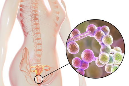 Vaginal thrush, female candidiasis, 3D illustration showing fungal vaginitis and close-up view of yeast fungi Candida 写真素材