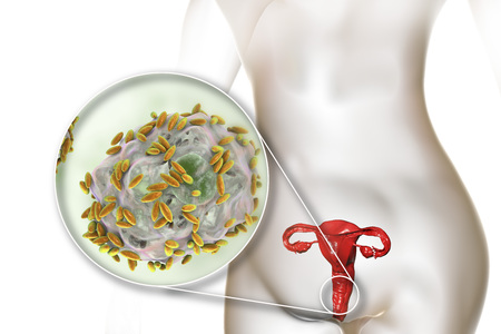 Bacterial vaginosis. Vaginal secretions contain epithelial cells, so-called clue cells covered with bacteria Gardnerella vaginalis, 3D illustration