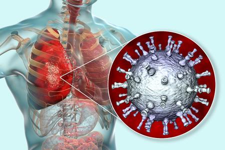 Varicella zoster virus pneumonia, chickenpox complication, 3D illustration Reklamní fotografie