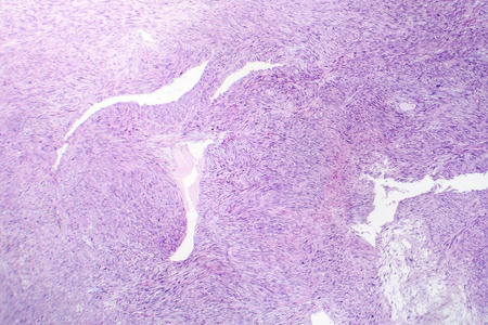Leiomyosarcoma, a malignant cancerous smooth muscle tumor, light micrograph, photo under microscope Stock Photo