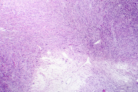 Leiomyosarcoma, a malignant cancerous smooth muscle tumor, light micrograph, photo under microscope 스톡 콘텐츠
