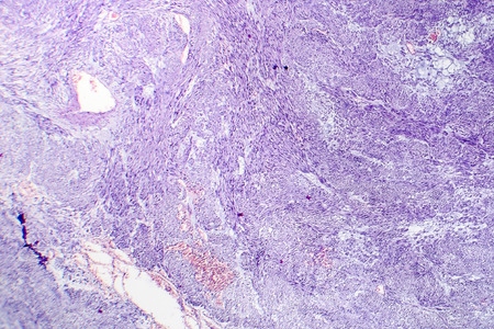 Leiomyoma, or fibroids, is a benign smooth muscle tumor, light micrograph, photo under microscope Stock Photo