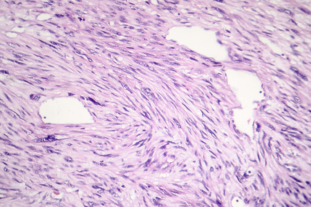 Leiomyosarcoma, a malignant cancerous smooth muscle tumor, light micrograph, photo under microscope Stock Photo