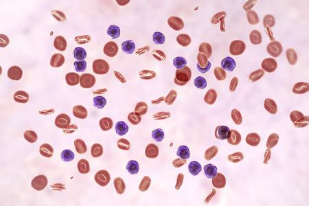Acute lymphoblastic leukemia, blood smear, 3D illustration