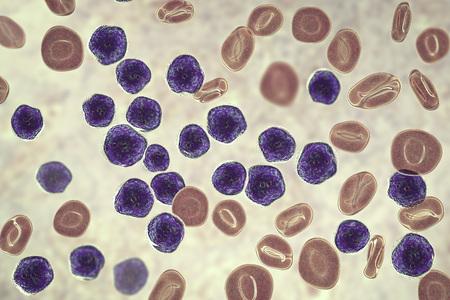 Acute lymphoblastic leukemia, bone marrow smear, 3D illustration