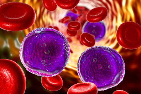 Leucemia linfoblástica aguda, ilustración 3D que muestra abundantes linfoblastos en sangre