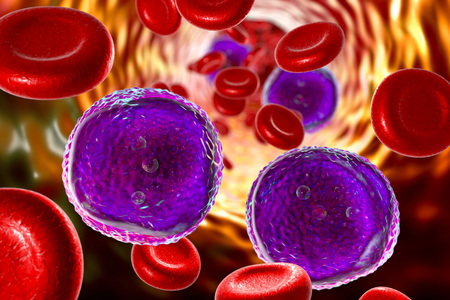 Acute lymphoblastic leukemia, 3D illustration showing abundant lymphoblasts in blood