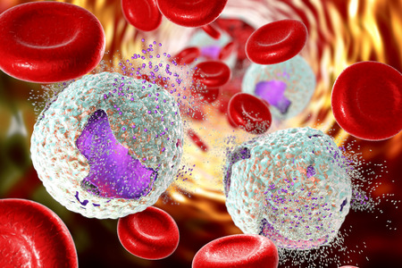 Destruction of lymphoblasts. Conceptual 3D illustration of treatment of acute lymphoblastic leukemia