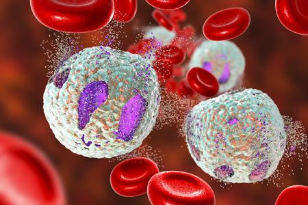 Destruction of lymphoblasts. Conceptual 3D illustration of treatment of acute lymphoblastic leukemia