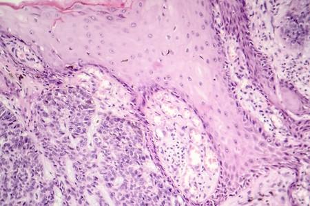 Basal cell carcinoma, skin cancer, light micrograph, photo under microscope Stock Photo