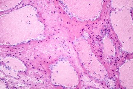 Hepatic cavernous hemangioma, a benign liver tumor, light micrograph, photo under microscope