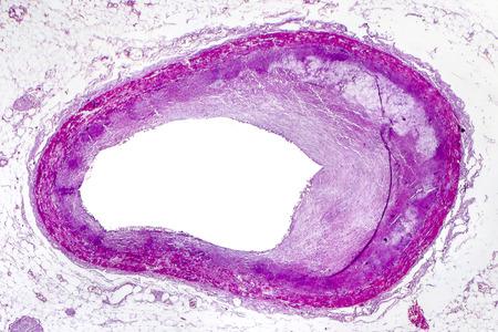 Ateroesclerosis coronaria, micrografía de luz que muestra una placa que contiene colesterol en la arteria coronaria del corazón, fotografía bajo microscopio