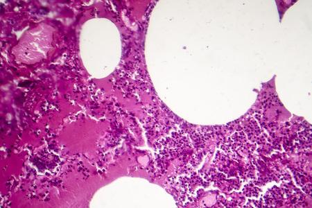 Lobar pneumonia, hemorrhagic edema period, light micrograph, photo under microscope