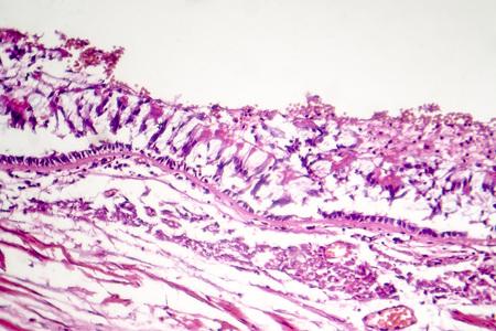 Chronic bronchitis, photo under microscope, light micrograph Stock Photo