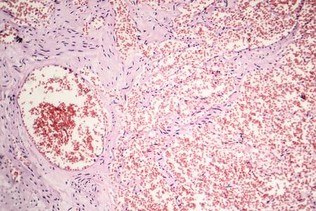 Capillary hemangioma, light micrograph, photo under microscope Stock Photo