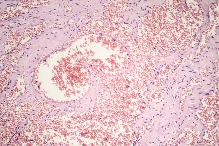 Hémangiome capillaire, micrographie optique, photo sous microscope