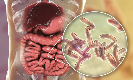 Vibrio cholerae bacteria in small intestine, 3D illustration. Bacterium which causes cholera disease and is transmitted by contaminated water Banco de Imagens
