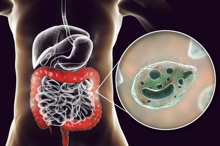 Balantidium coli protozoan in large intestine, 3D illustration. Ciliated intestinal parasite that causes balantidiasis Stok Fotoğraf