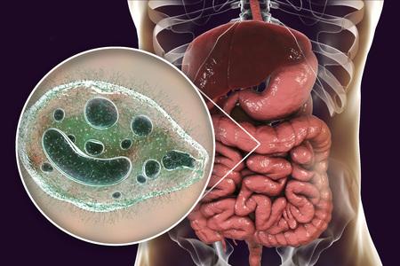 Balantidium coli protozoan in large intestine, 3D illustration. Ciliated intestinal parasite that causes balantidiasis Stock Photo
