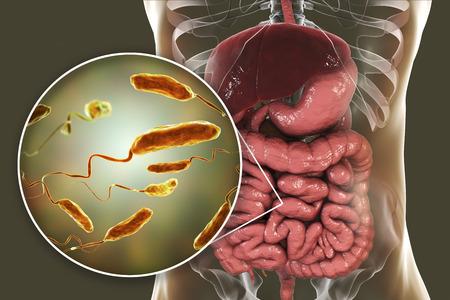 Bactéries Vibrio cholerae dans l'intestin grêle, illustration 3D. Bactérie responsable du choléra et transmise par l'eau contaminée