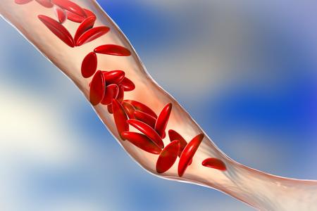 Sichelzellenanämie, 3D-Darstellung. Sichelzellansammlungen verstopfen die Blutgefäße