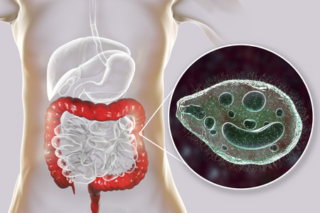 Balantidium coli protozoan in large intestine, 3D illustration. Ciliated intestinal parasite that causes balantidiasis Reklamní fotografie