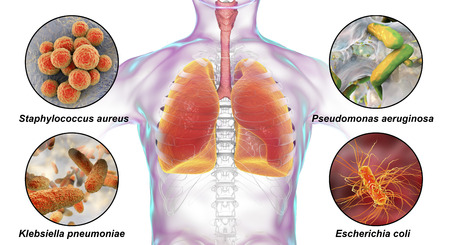 Patogeni respiratori umani, batteri che causano la polmonite nosocomiale, illustrazione 3D. Staphylococcus aureus, Pseudomonas aeruginosa, Klebsiella pneumoniae ed Escherichia coli
