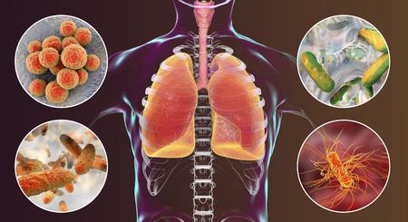 Patogeni respiratori umani, batteri che causano la polmonite nosocomiale, illustrazione 3D. Staphylococcus aureus, Pseudomonas aeruginosa, Klebsiella pneumoniae ed Escherichia coli Archivio Fotografico