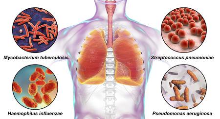 Human respiratory pathogens, 3D illustration. Mycobacterium tuberculosis, Streptococcus pneumoniae, Haemophilus influenzae and Pseudomonas aeruginosa