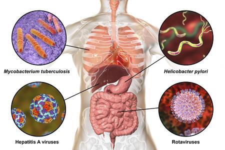 Human pathogenic microbes, respiratory, enteric and liver pathogens, 3D illustration. Mycobacterium tuberculosis, Helicobacter pylori, Hepatitis A viruses, Rotaviruses