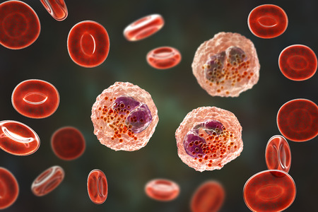 Eosinophilia, blood smear showing multiple eosinophils surround by red blood cells, 3D illustration. Eosinophilia occurs in parasitic and fungal infections, allergies, autoimmune disorders, tumors Stock Photo