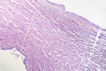 Histopathology of viral pneumonia, light micrograph, photo under microscope